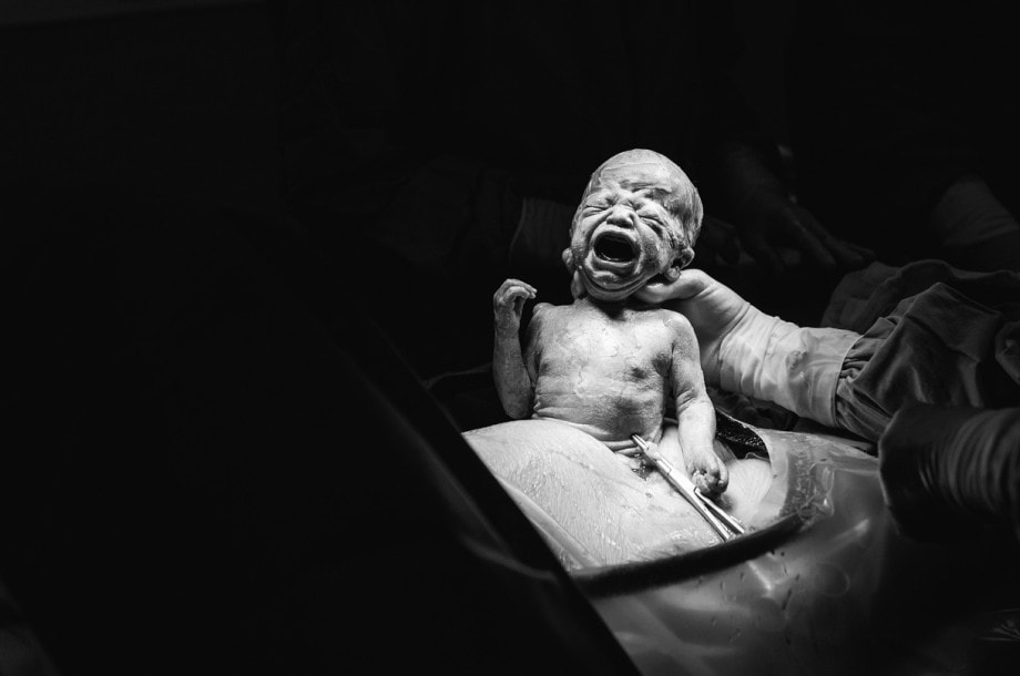 black and white of a baby being delivered through cesarean section